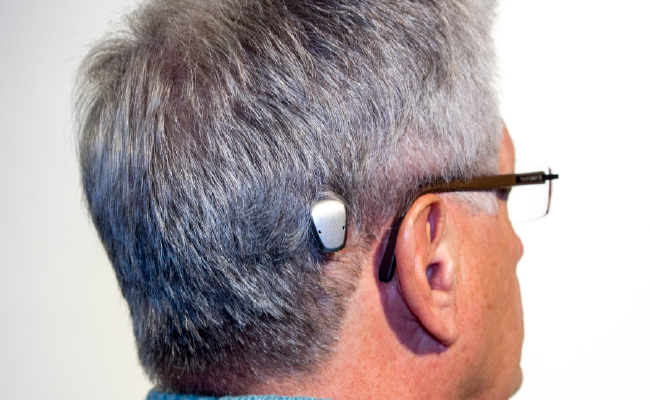 Bone Conduction Implant